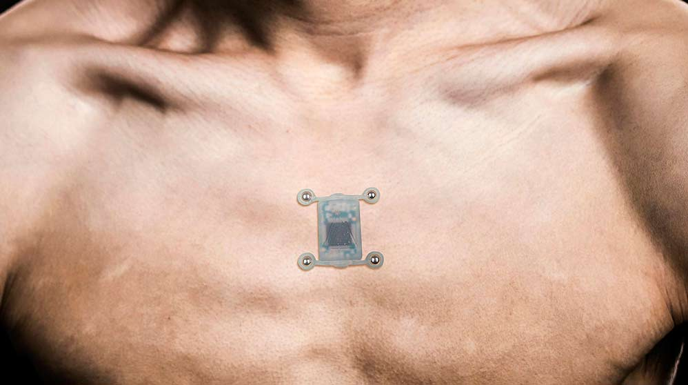Un dispositivo revolucionario