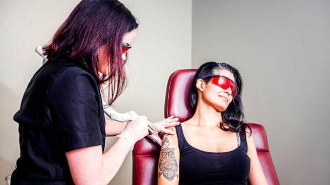 quitar un tatuaje en condiciones de seguridad