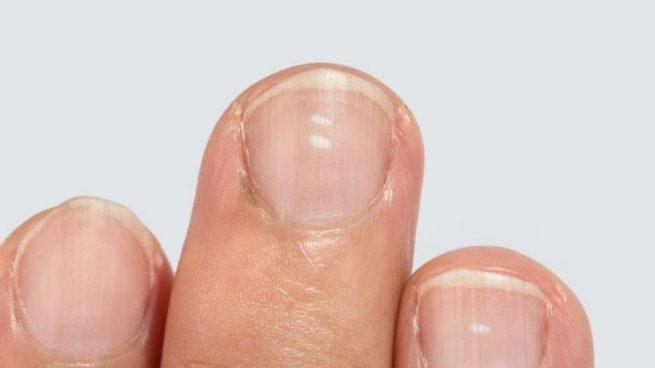 uñas del pie manchas blancas