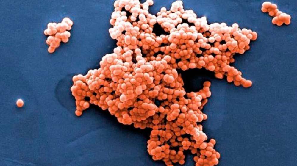 Bacteria comecarne vista al microscopio