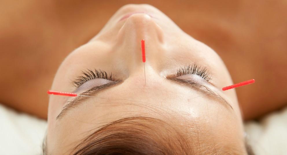 Estas finas agujas estimulan diversas partes del cuerpo.