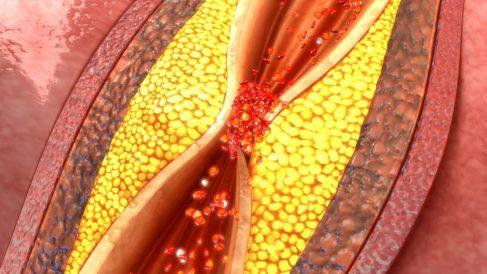 El colesterol se agrupa en lipoproteinas.