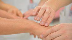 Pasos para tratar un eccema dishidriótico de forma eficaz