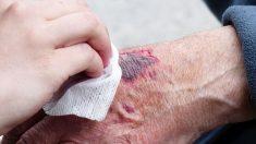 heridas infectadas