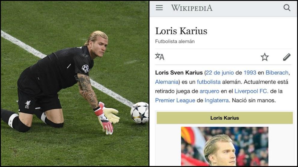 Karius «nació sin manos» según Wikipedia.