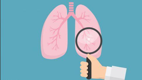 Cáncer de pulmón (Foto. Istock)