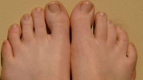 infección dedo pie