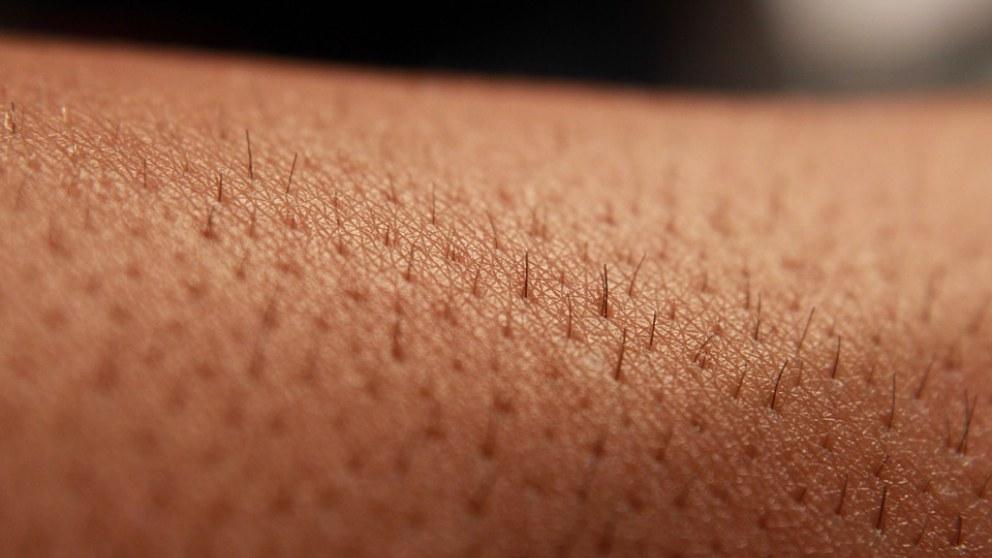 Cuáles son las capas de la piel