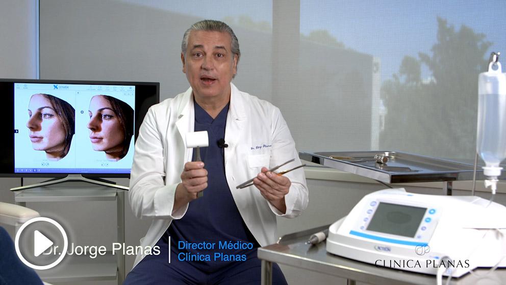 El doctor Jorge Planas explicando la nueva técnica de rinoplastia supersónica de la Clínica Planas.