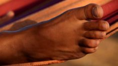 dolor dedo pie