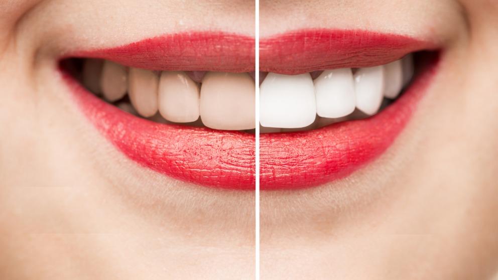 Las manchas en los dientes pueden surgir por diversos motivos, como el tabaco o la falta de higiene.
