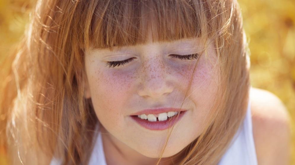 Cómo disimular las pecas de la cara con remedios naturales