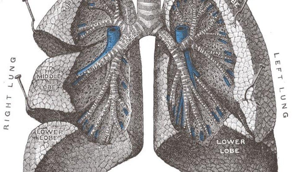 La embolia pulmonar se origina en las arterias del pulmón.