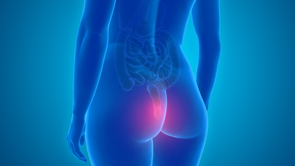 El recto es la última zona del intestino grueso
