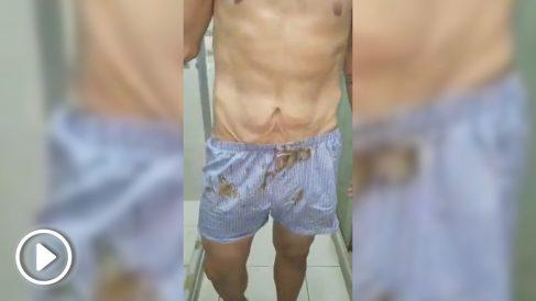 El diputado Juan Requesens, torturado, admite su participación en el supuesto atentado contra Nicolás Maduro.