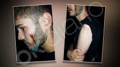 En las imágenes se aprecian las lesiones sufridas por el joven.