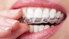 Cómo limpiar el aparato de los dientes
