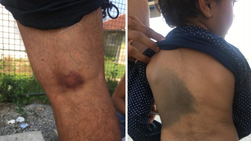 Inmigrantes agredidos en la frontera entre Bosnia y Croacia. (Foto: nonamekitchen.org)