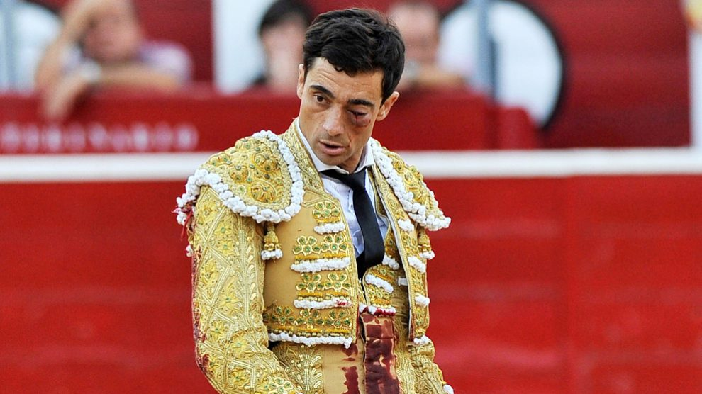 Paco Ureña tras la grave cornada en el ojo izquierdo en Albacete. (Foto: EFE)