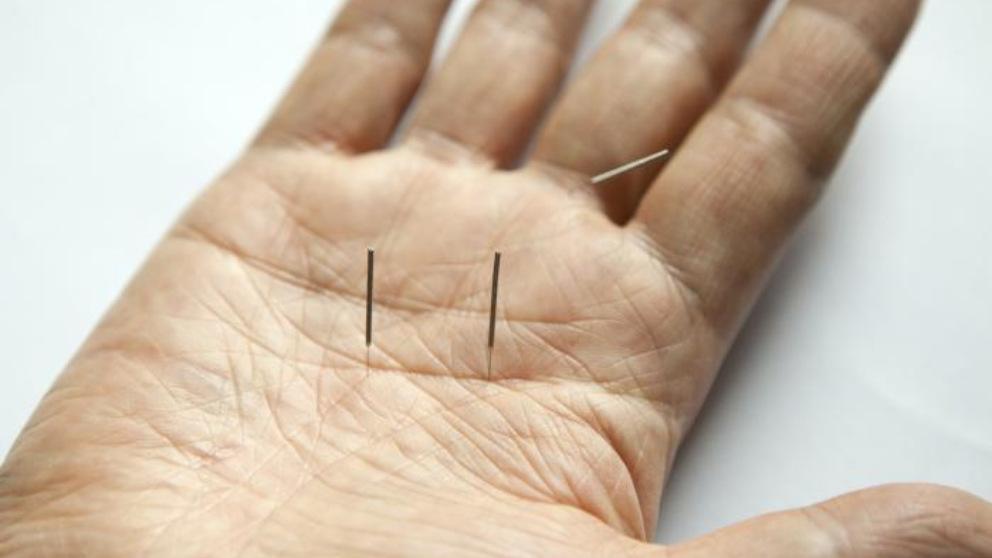 Descubre los principales puntos de acupuntura