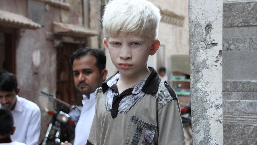 Conoce más sobre los albinos.
