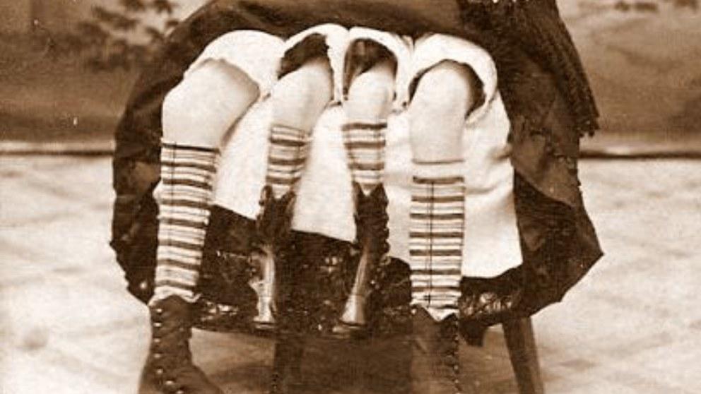 Josephene Myrtle Corbin, todo sobre la mujer de las 4 piernas