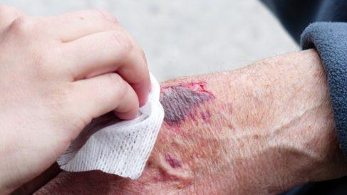 Hay que tener mucho cuidado a la hora de desinfectar una herida