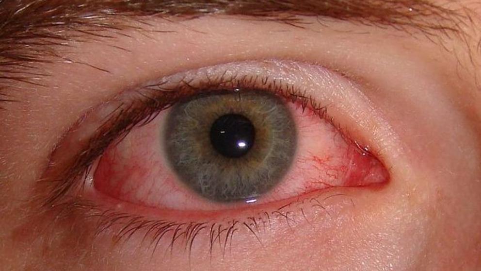 La rosácea ocular suele afectar a personas en edad adulta
