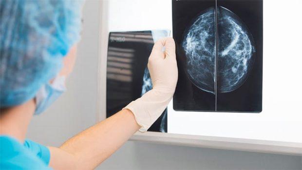 como detectar el cancer de mama