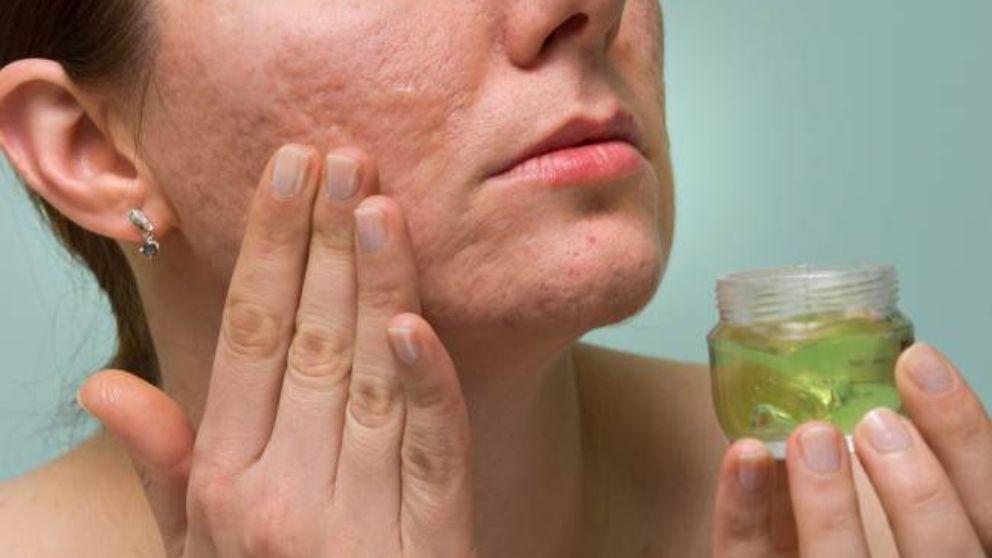 Remedios y tratamientos para eliminar las cicatrices por acné