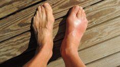 Aprende cómo es el nuevo ligamento en el tobillo