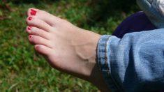Cuando hablamos de dormirse los dedos de los pies nos referimos al entumecimiento de éstos.