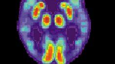 Una inteligencia artificial predice el Alzheimer