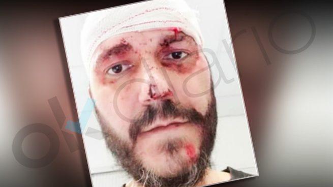 El hombre agredido por los CDR en Barcelona está enfermo de cáncer y tiene una discapacidad del 66%