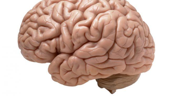 cerebral desconocida