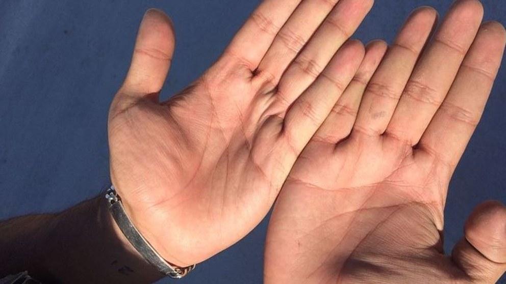 La artritis comporta que se de este dolor en articulaciones.