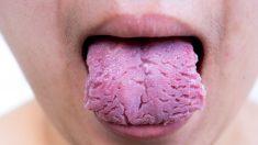 Guía de pasos para curar la lengua agrietada