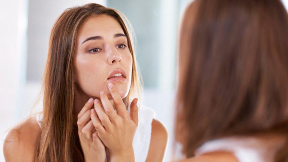 Aprende cómo puedes evitar granos en la cara