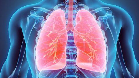 Más visión y precisión: así funciona la robótica en la cirugía pulmonar (Foto: iStock)