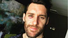 Rudy Fernández mostró en las redes sociales las secuelas de su encontronazo con Baskonia.