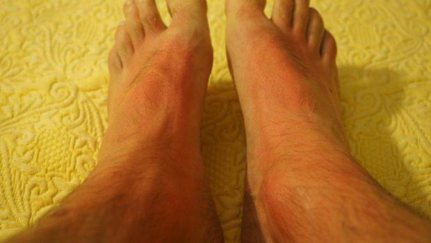Manchas quemaduras pies