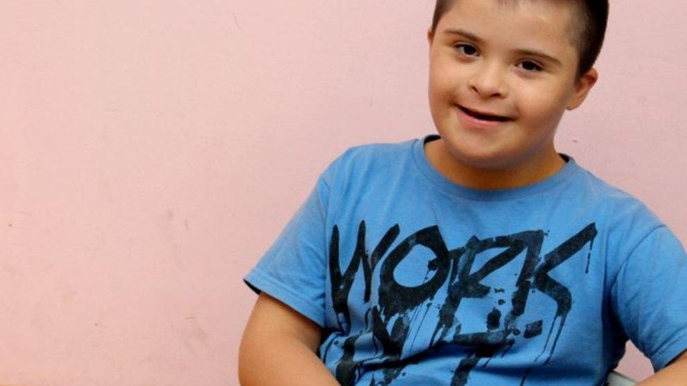 Este síndrome se conoce también como trisomía 21.