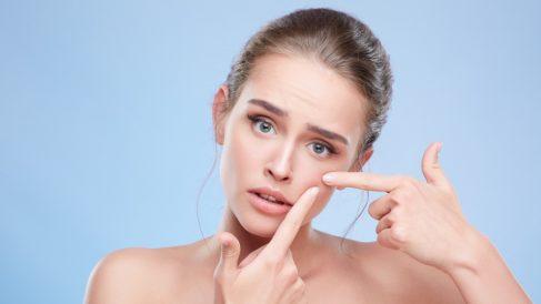 Conoce los mitos sobre el acné en los que deberías dejar de creer
