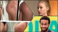 El examen médico no ha detectado lesiones en las partes íntimas de Trindade.