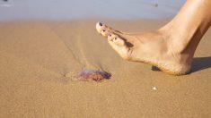 Consejos que debes saber sobre las medusas