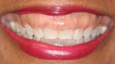 Qué son las fundas dentales y qué tipos hay