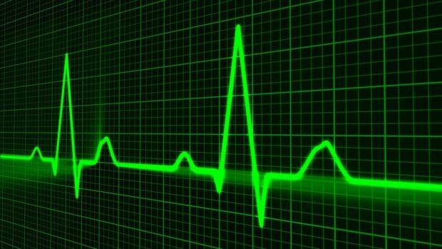 Qué es un paro cardíaco y un infarto