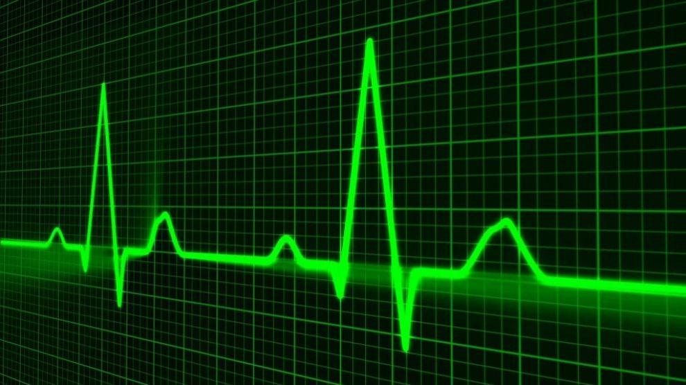 Conoce las diferencias entre paro cardíaco e infarto