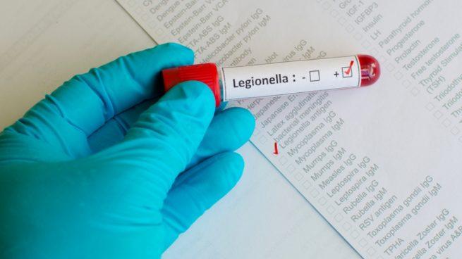 Legionelosis: Qué es y cómo tratarla