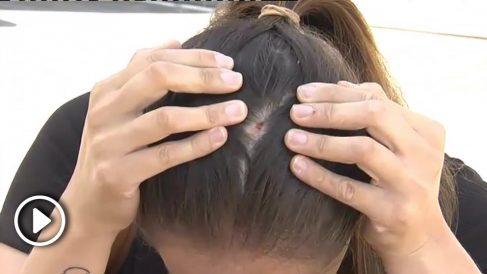 Las heridas producidas tras la agresión.